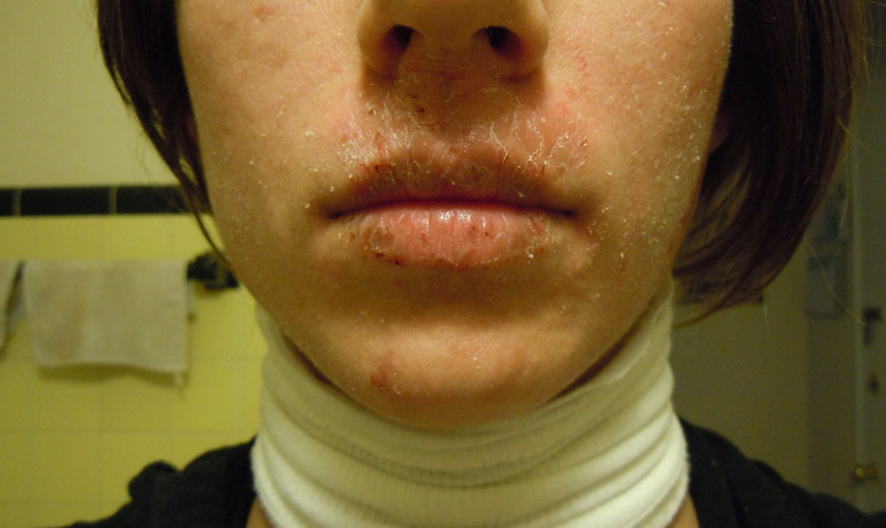 dermatitis neglecta how to get rid of
